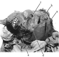 The head of Seqenenre Tao mummy